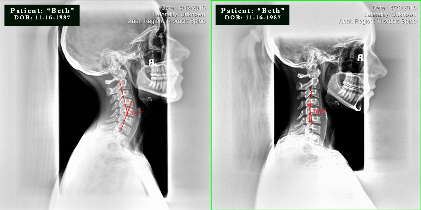 beth pre/post cervical x-ray